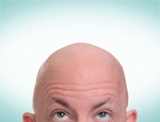 What Causes Baldness and Hair Loss?